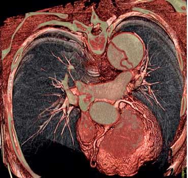 Siemens cardiac image