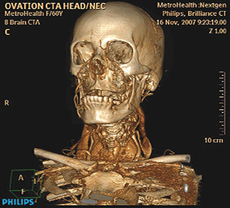 Phillips skull scan